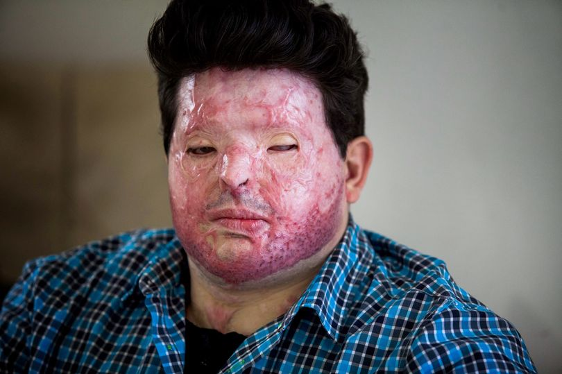 Dad scarred for life in mistaken identity acid attack 'sickened' as yob gets day release